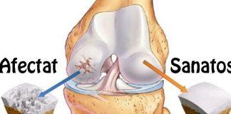 cum să încetinească dezvoltarea artrozei genunchiului