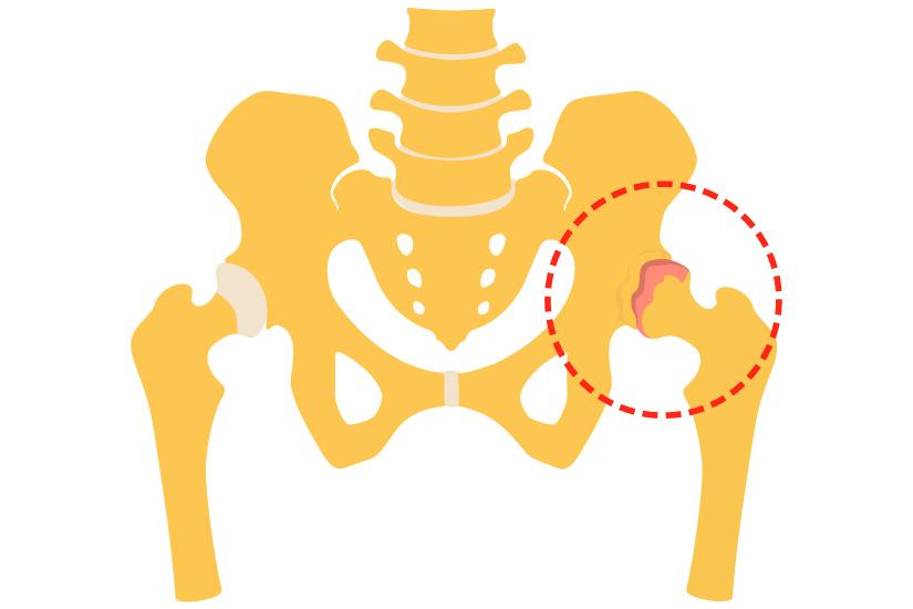 care sunt artrite ale simptomelor șoldului dureri articulare la brâu de umăr