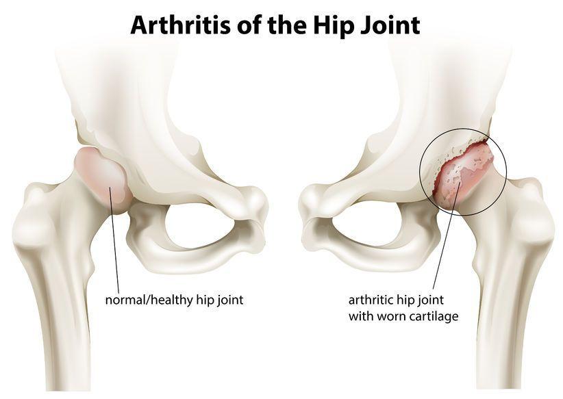 cauzele artritei articulației șoldului
