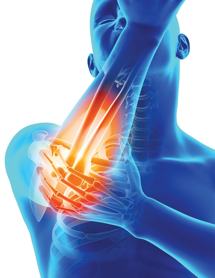 inflamația mucoasei pungului articulației cotului