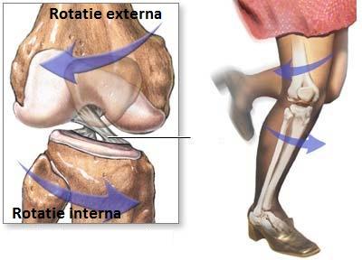 consecințe ale leziunilor ligamentului genunchiului