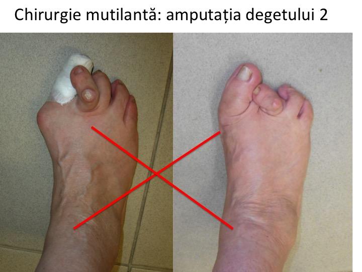 cum arată artrita degetelor de la picioare