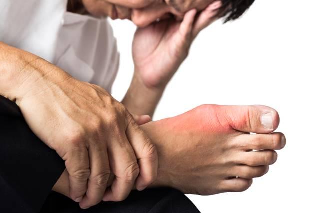 cum să tratezi artrita gutoasă în brațe Lista de medicamente cu glucozamină