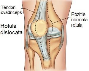 cum să tratezi deplasarea genunchiului