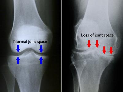 apariția durerilor de umăr de ce sar genunchii