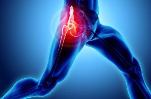 dureri articulare și boala parkinson