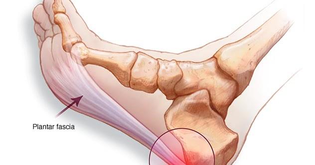 de unde să cumpărați medicamente pentru durerile articulare