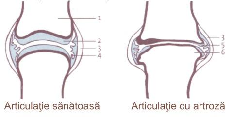 metodă eficientă de tratare a genunchiului simptomele și tratamentul artrozei toracice