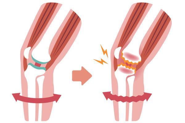 deformarea artrozei în 2-3 grade de tratament