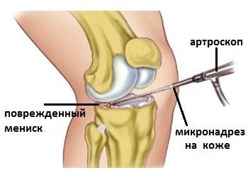deteriorarea meniscului 2 grade ale articulației genunchiului dureri de fese în zona șoldului