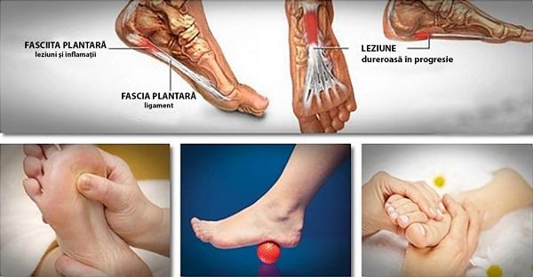 stadiul de artroză a articulației șoldului