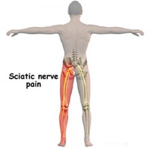 durere în articulația sciatică durere persistentă la genunchi