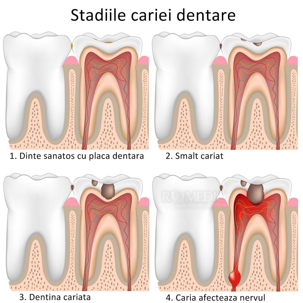 dureri articulare din cariile dentare