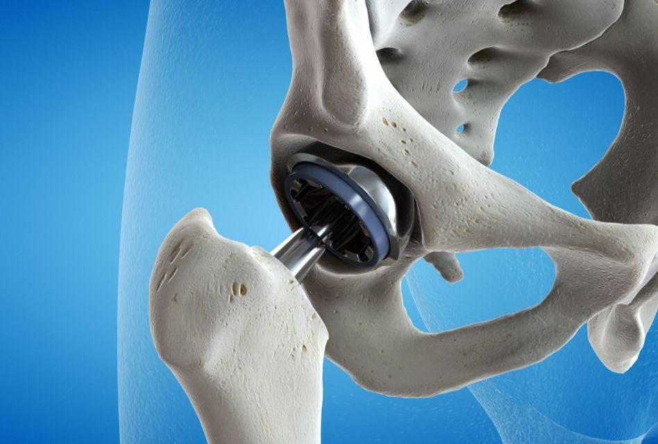 dureri articulare după artroplastie ce să facă sportivi cu condroitină glucozamină