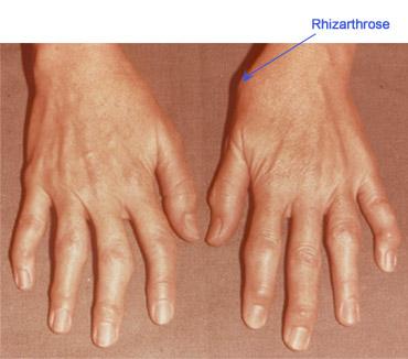 dureri articulare sub vârful degetului cum să tratezi durerea în articulații și tendoane