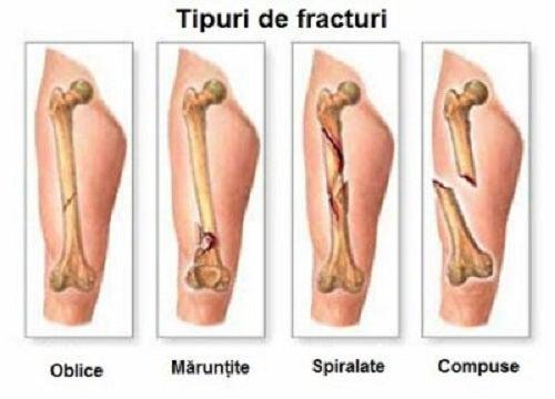 dureri de cancer la genunchi