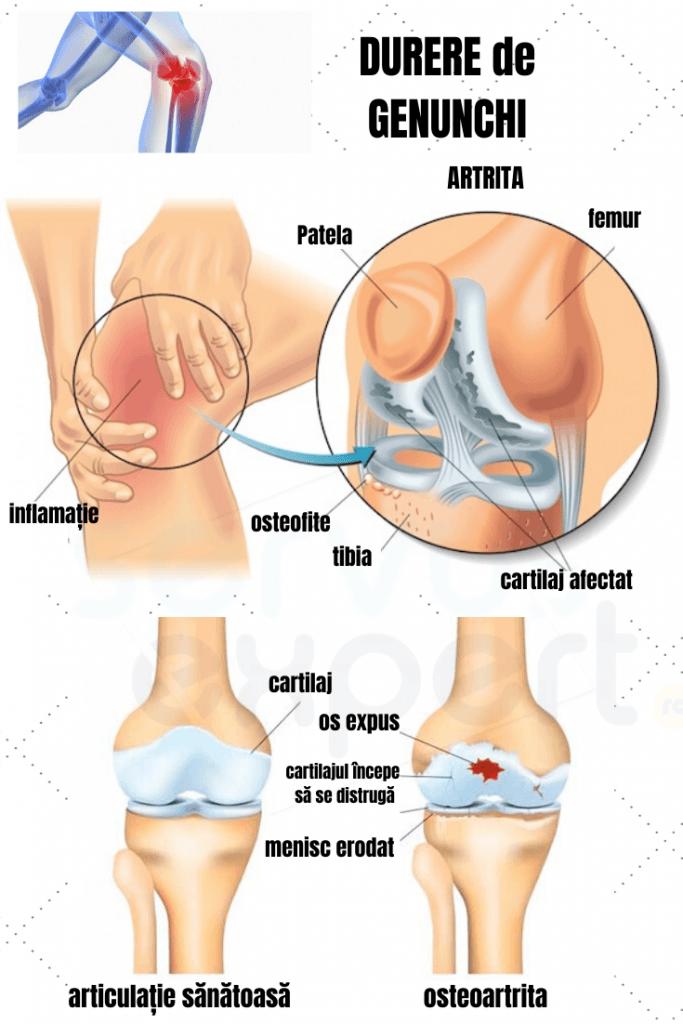 dureri de genunchi atunci când se apleacă dezvoltare comună pentru artroză