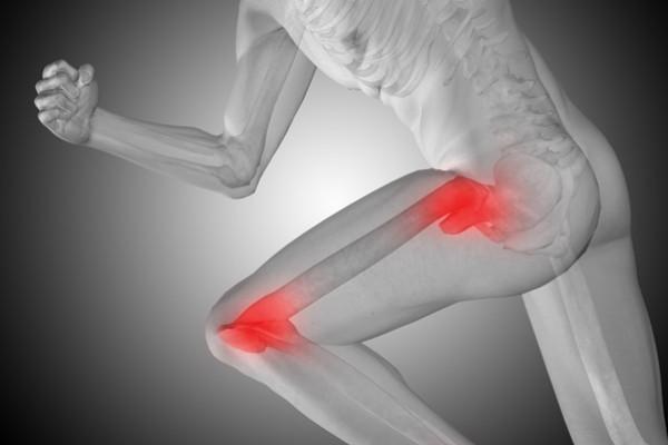 dureri de șold care radiază până la picior unguent pentru articulațiile durerii