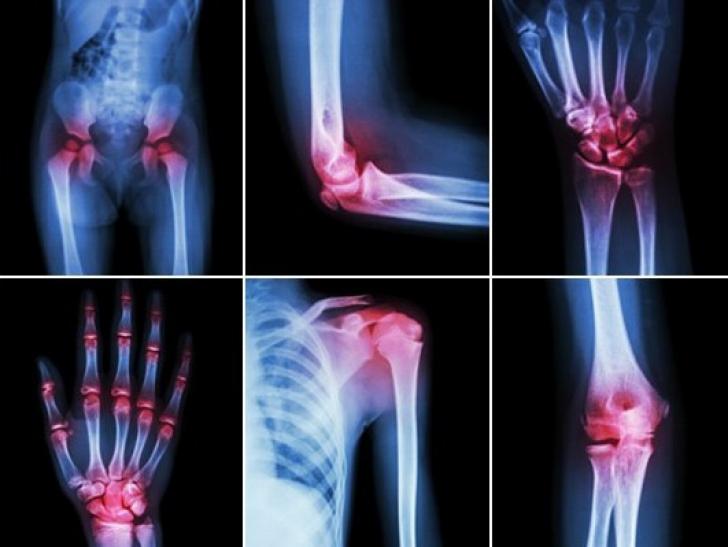 tratament secundar de artroză