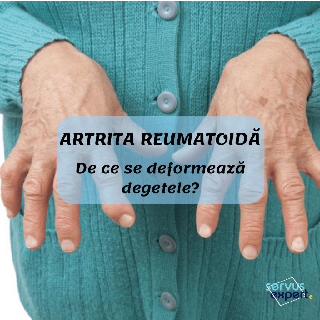 simptome de artroză articulară a genunchiului cum să amelioreze umflarea articulației cu artrita