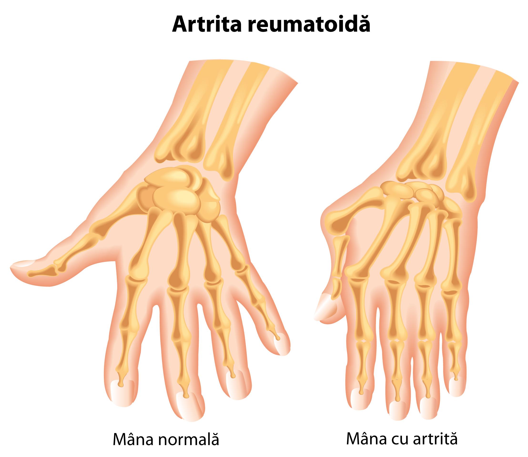 artrita reumatoidă deformarea degetelor de la nivelul picioarelor tratamentul bolilor articulare pentru boala articulară