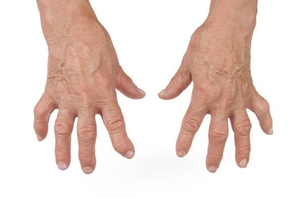 ameliorați inflamațiile în articulațiile mâinilor