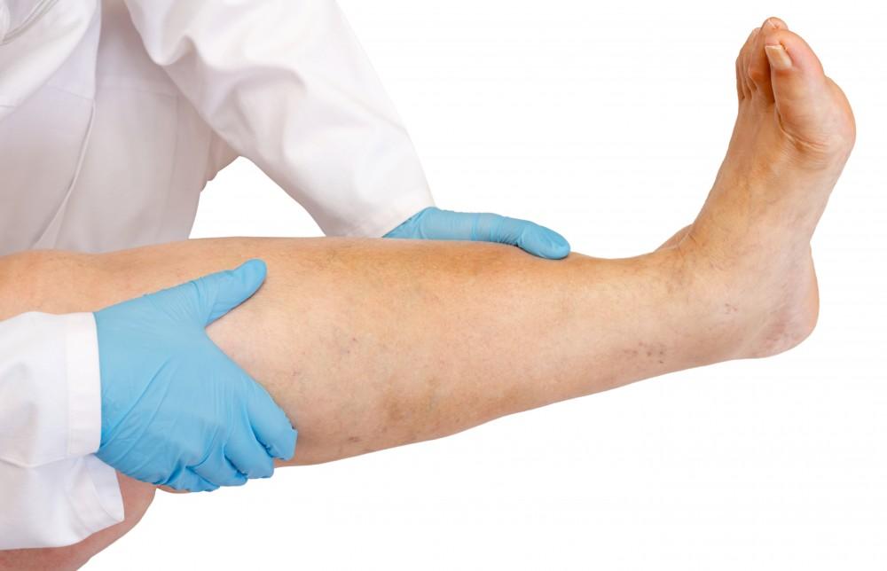 Limfedem ( Edem limfatic ): Cauze, simptome, tratament, complicatii | genunetwork.ro