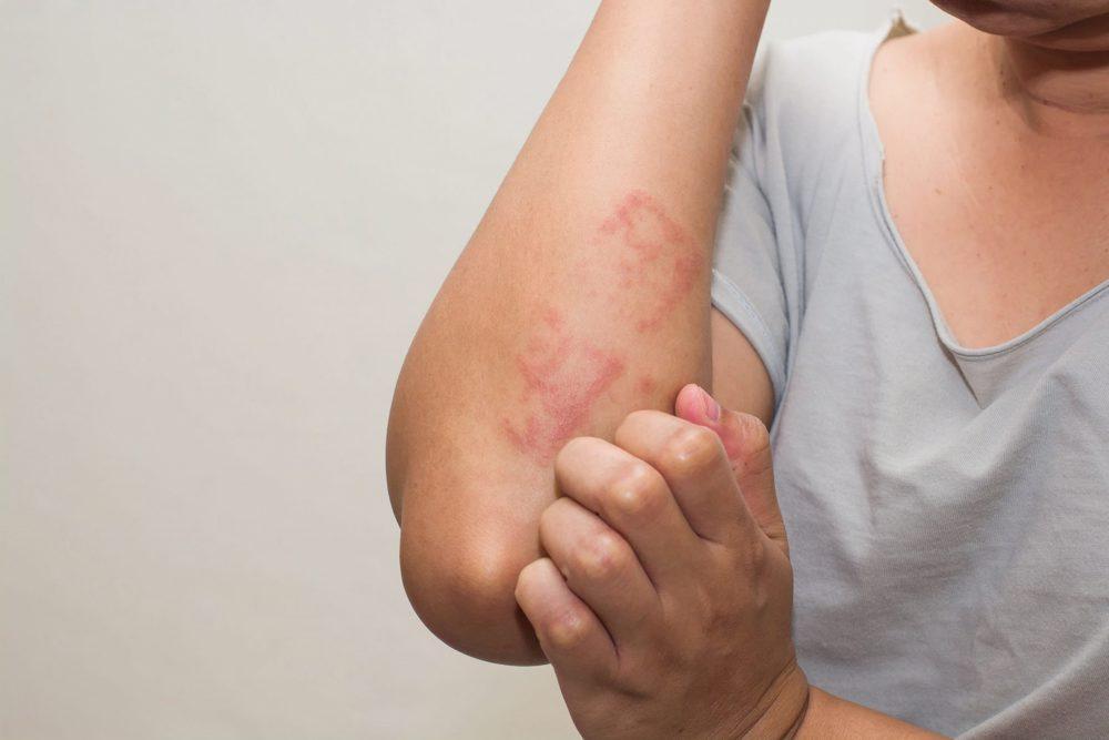 probleme la cot împotriva artritei articulațiilor