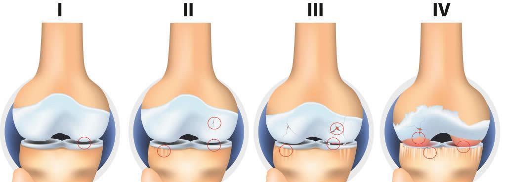 medicamente pentru gonartroza articulației genunchiului Разрыв передней связки лечения коленного сустава