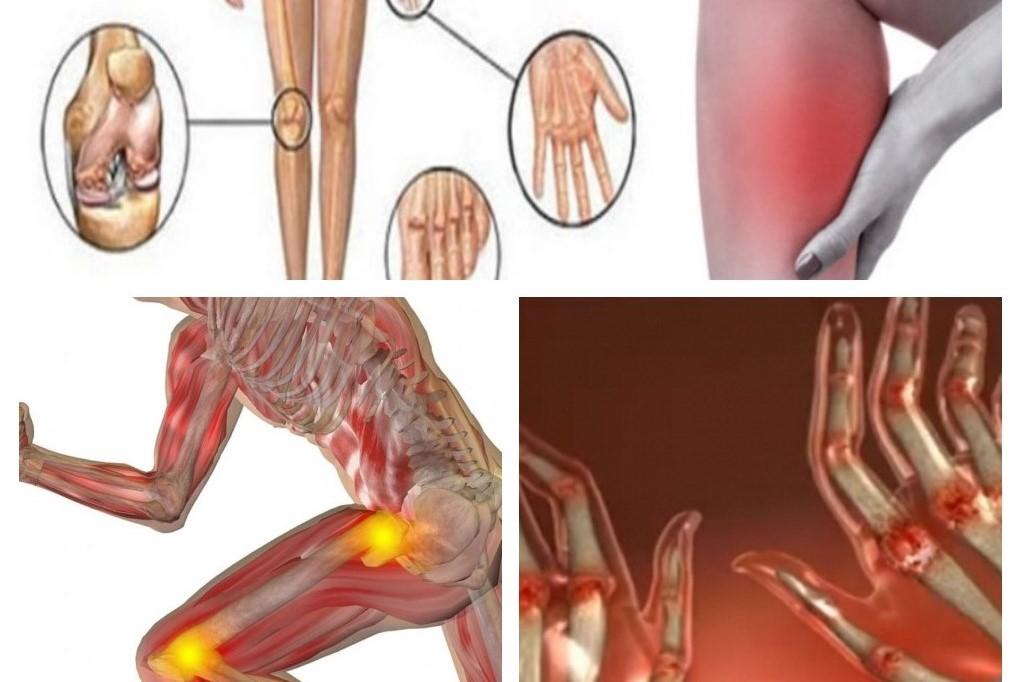 simptomele și tratamentul articulației artritei unguent din articulațiile diclac