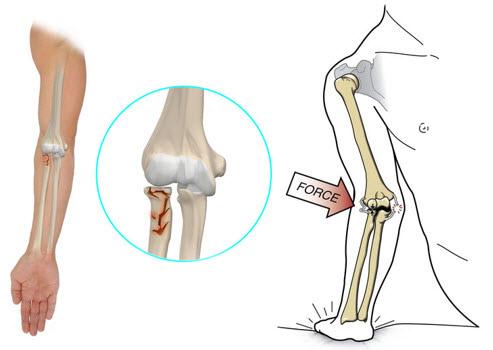 refacerea articulației cotului după o fractură