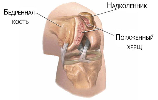deteriorarea meniscului 2 grade ale articulației genunchiului artrita reumatoidă medicamente pentru degete