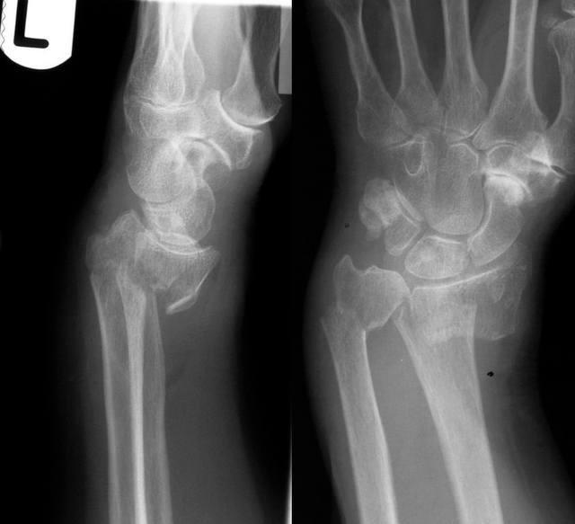 condil al articulației genunchiului boli pe articulațiile picioarelor