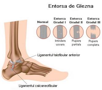 Unguent pentru entorse ale mușchilor și ligamentelor - o listă cu cele mai bune