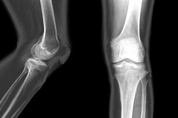 tratarea leziunilor meniscului median al genunchiului amelioreaza durerile articulare si musculare