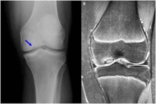 unguent de restaurare a articulațiilor umărului meridianul articular