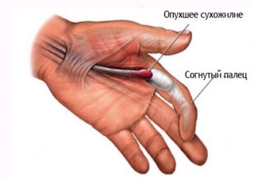 cumpăra unguente pentru osteochondroza coloanei vertebrale cervicale deteriorarea meniscului genunchiului tratament de 2 grade