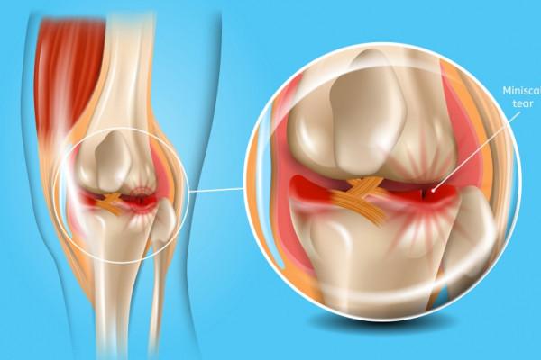 dureri de articulații din Vietnam inflamarea articulațiilor dureri de volatilitate
