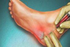 inflamație calcaneală