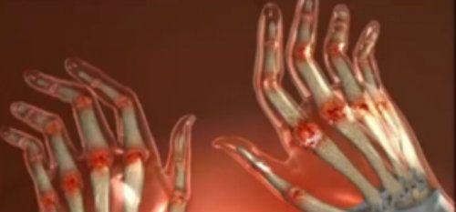 manifestarea bolilor articulare cum să tratezi artrita ulnară