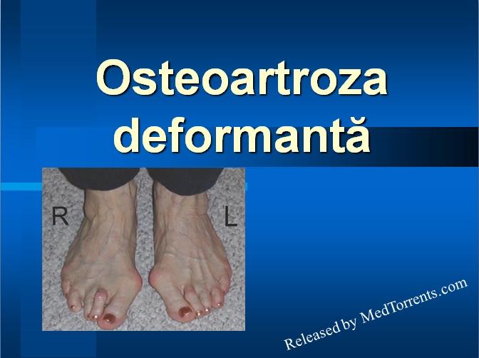 patogeneza bolii articulare inflamația articulației cotului 3 grade