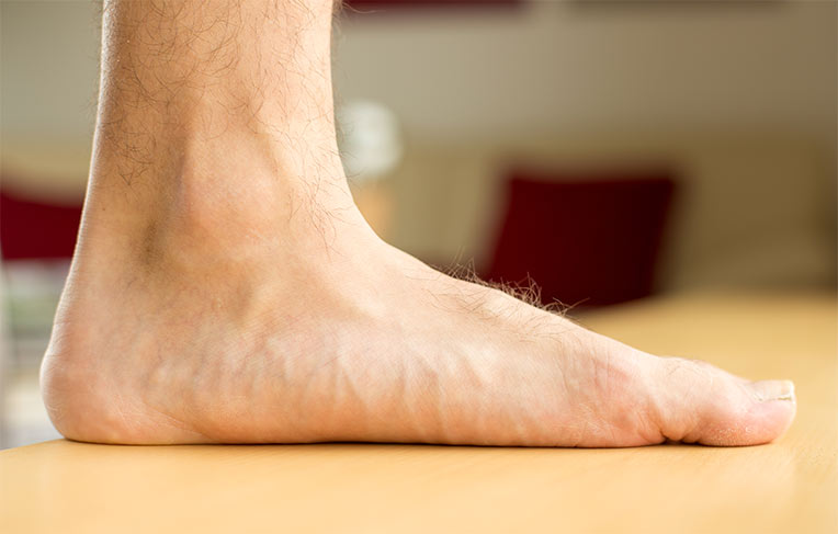 picioare plate și durere în articulațiile piciorului umflarea nici o durere în articulația gleznei