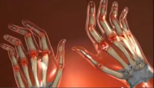 toate cauzele bolilor articulare cauze ale umflarea articulațiilor