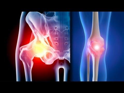trental cu artroza genunchiului
