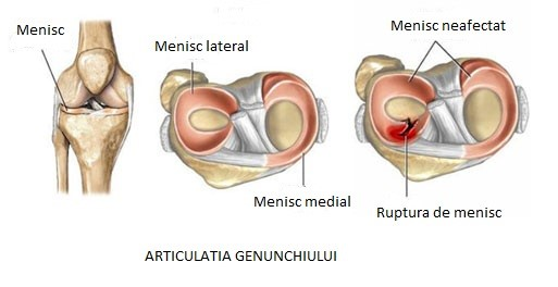 simptomele leziunilor la genunchi cu menisc