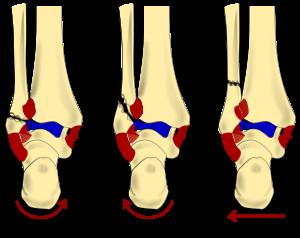 tratament articular calcaneal