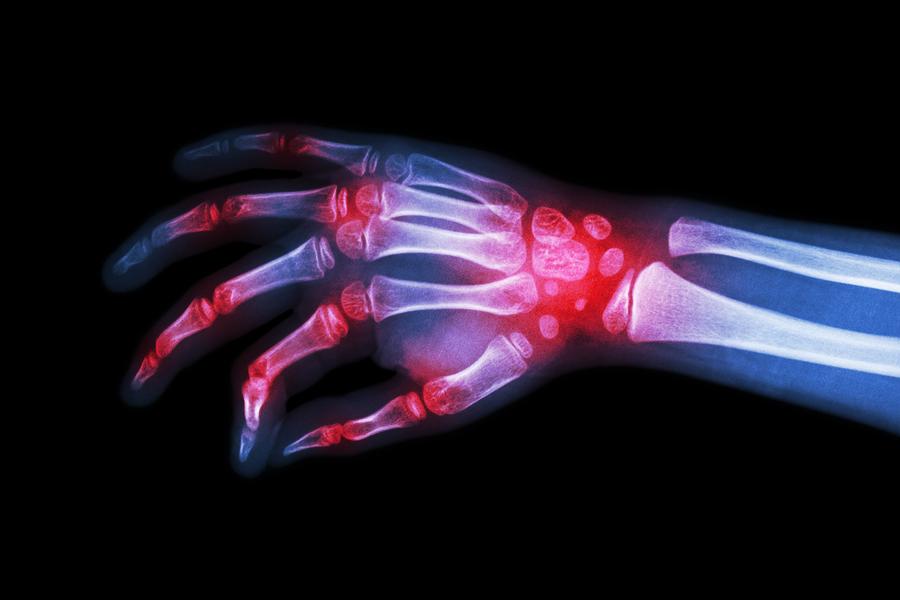 medicamente pentru articulație aparat de fizioterapie pentru tratamentul artrozei