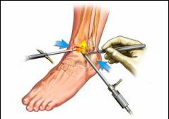 articulațiile doare cu adevărat ce este artroza-tratament distructiv