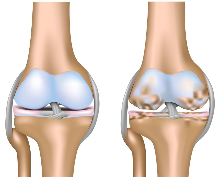 tratamentul articulației măduvei osoase