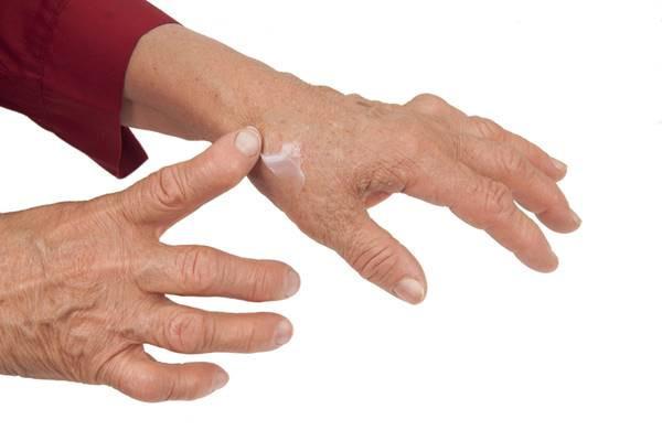 articulațiile degetelor și degetelor de la picioare